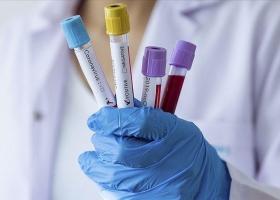 Коронавирус в Украине: за сутки почти тысяча новых заболевших