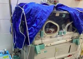 В Ужгороде врачи провели уникальную операции и спасли жизнь недоношенных тройняшек